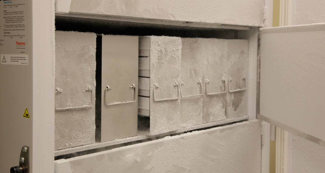 the open freezer door showing five pull-out drawers of tissue samples